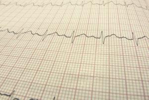 Holter EKG Szczecin