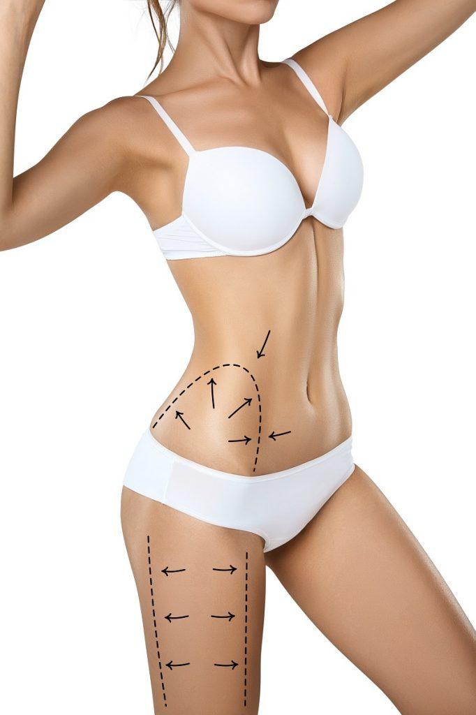 liposukcja infradźwiękowa